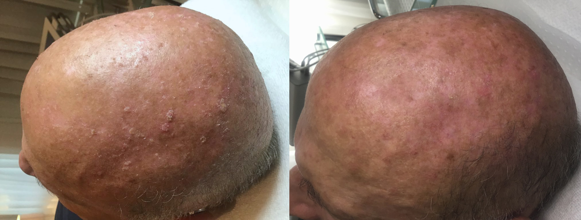 Neogen-solar keratosis images before after