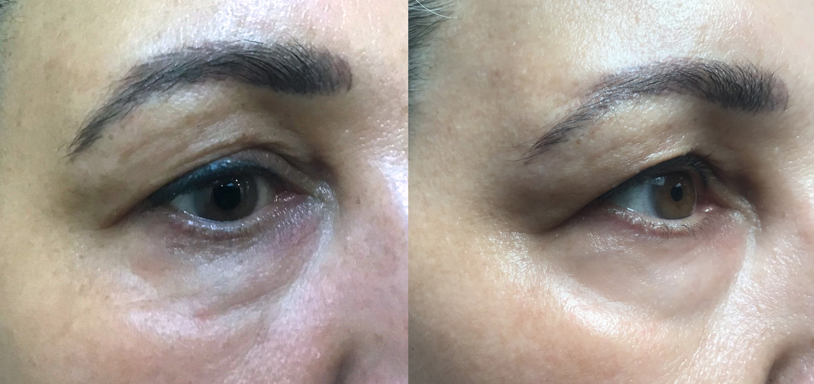 skin_tightening_before_after