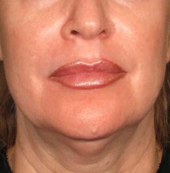 E-Clip+ HIFU™ and FOCUS HIFU™ - Face Lift treatment - Skin